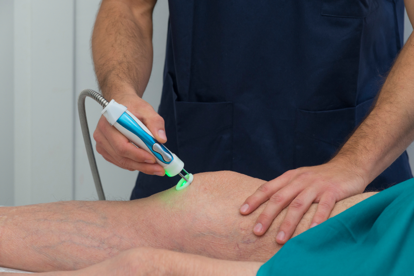 Laser therapy on a knee